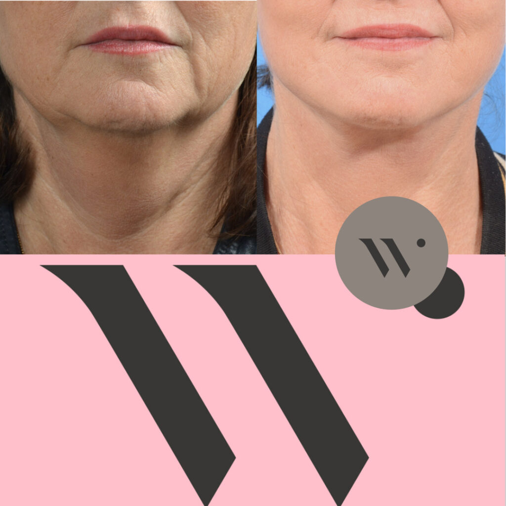 Dokter Wever - facelift en halslift