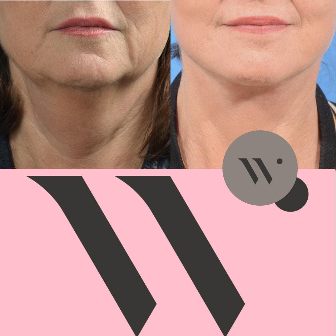 Dokter Wever - face en halslift