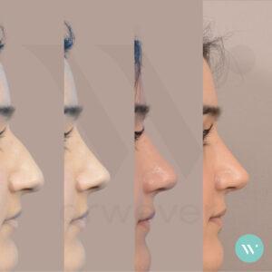 Dokter Wever - neuscorrectie